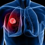 November: Lung Cancer Awareness Month