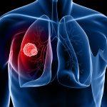 November: Lung Cancer Awareness Month